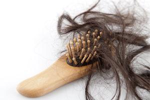 Много выпавших волос