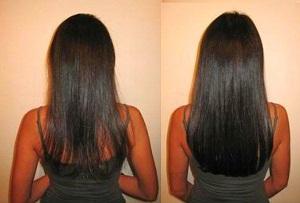 Что говорят женщины о шампуне Алерана для роста волос