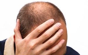 Как помогает мужчинам шампунь Алерана в облысении