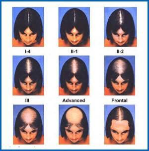 Как классификацировать женскую алопецию