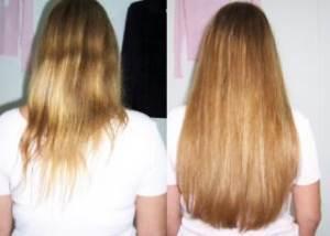 Как быстро растут волосы при использовании никотиновой кислоты