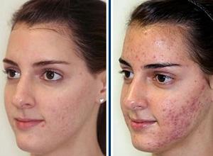 Что говорят в отзывах женщины о применении дегтярного мыла для лица?