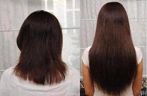 Как помогает Димексид отрастить волосы