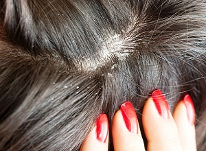 Как заболевания кожи головы влияют на выпадение волос?