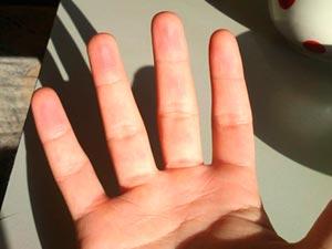 покраснение рук