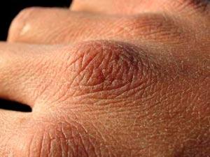 цыпки на руках