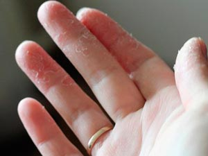 шелушится кожа рук