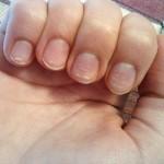Белые пятнышки на ногтях: причины