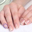 белые полоски на ногтях