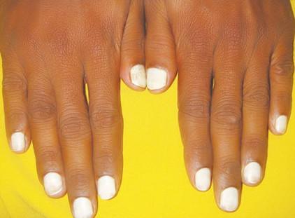 белые ногти болезнь