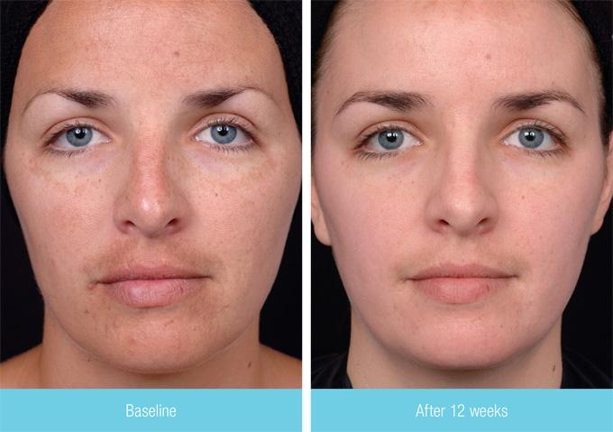 Пилинг для лица до и после