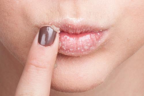 пилинг губ дома