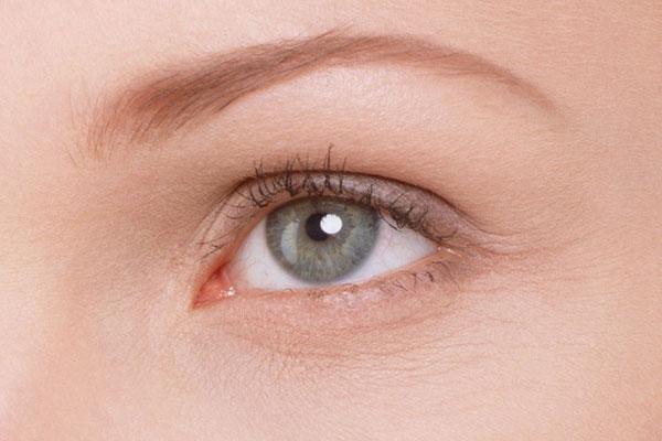 Мимические морщины вокруг глаз как избавиться после 25